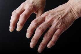 magnetisme-contre-arthrose